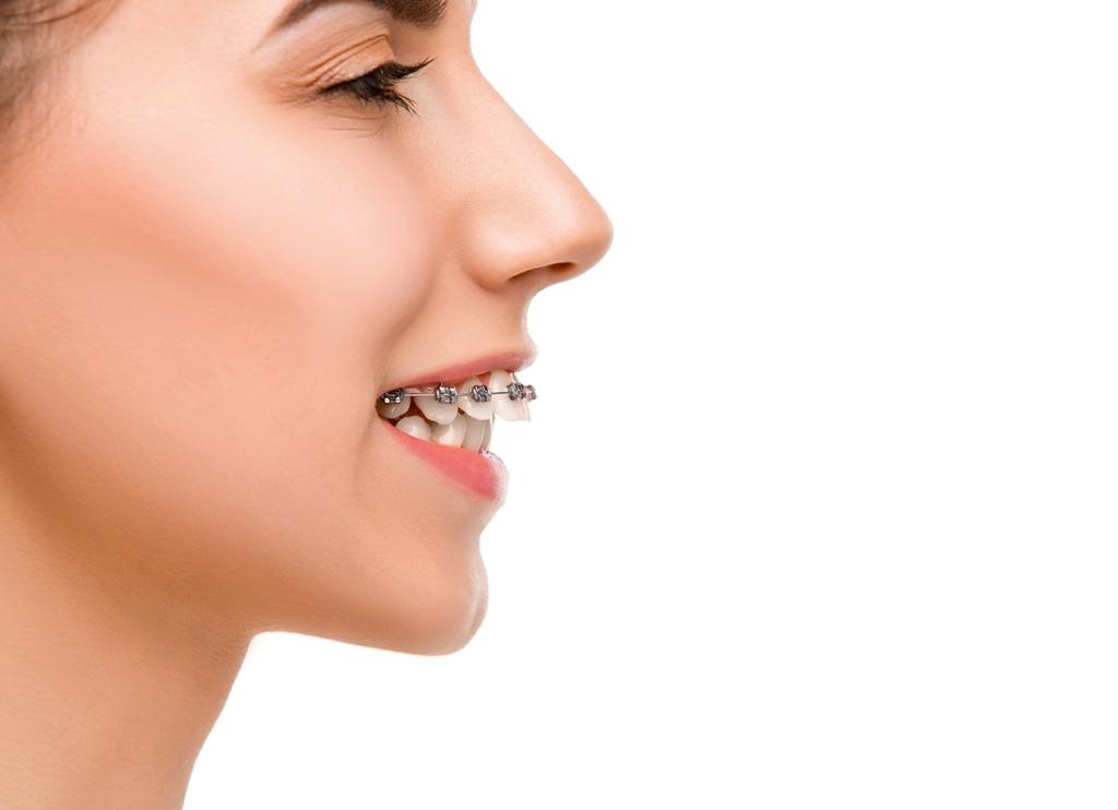 Брекети (Ортодонт)