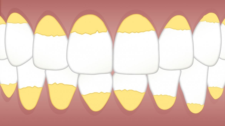Профилактика (Почистване зъбен камък)