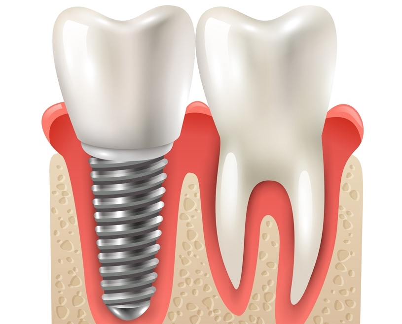 Зъбни импланти (Имплантология)