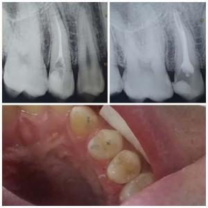 Зъболекар София - случаи