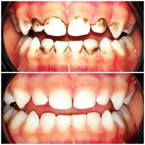 почистване зъбен камък