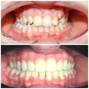 ортодонт преди и след
