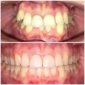 брекети преди и след