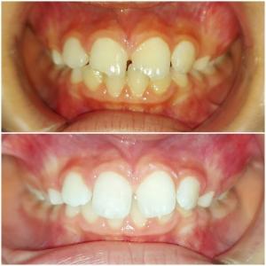 бондинг зъби