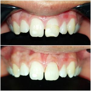 бондинг предни зъби