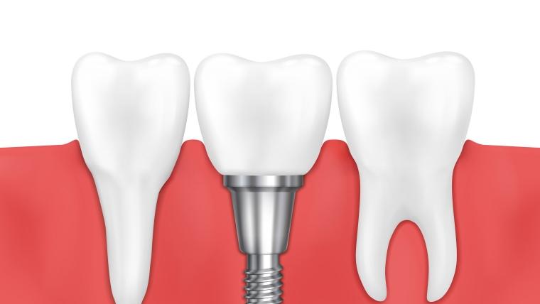 Зъбни импланти – лечението